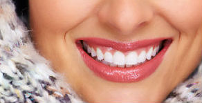 Porcelain Veneers | River Pointe Dental | Dentist Conroe, TX