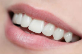 White Fillings | River Pointe Dental | Dentist Conroe, TX
