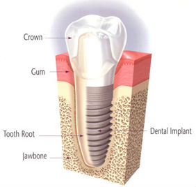 Dental Implants | Dr. Carol White | River Pointe Dental | Dentist Conroe, TX